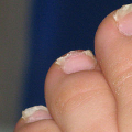 Nemoci podle nehtů