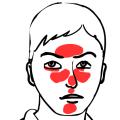 Jak seléčí rosacea neboli růžovka