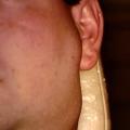 Rakovina mízních uzlin