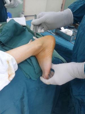 Achillova pata
