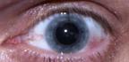 Jak na červené žilky v oku