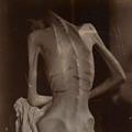 Jak překonat anorexii